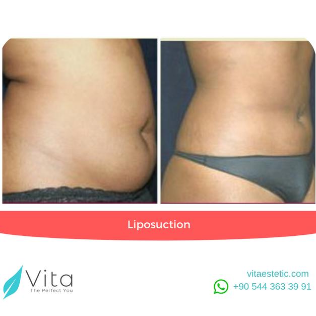 Liposuction in Turkey | Abdominoplasty | Before - After | Vita Estetic