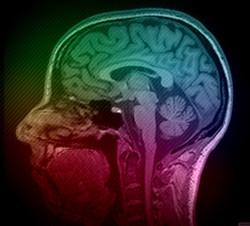 my very own brain's FMRI