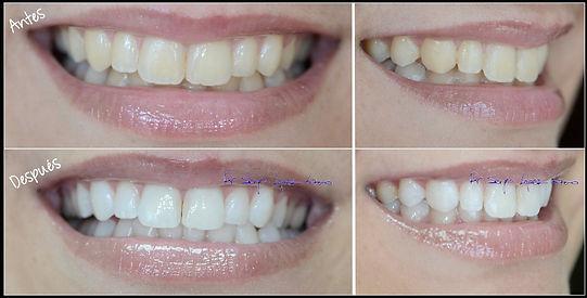 blanqueamiento zoom torres cotillas murcia estetica dental dentistas