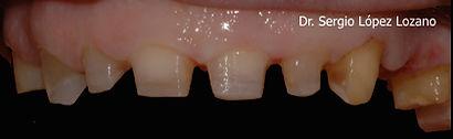 #Tratamiento fundas en Murcia #Coronas en Murcia #Tratamiento dental Torres de Cotillas