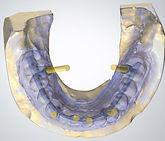 cad cam clinica dental torres de cotillas