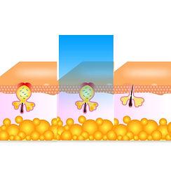 IPL Acne Treatment Dapto