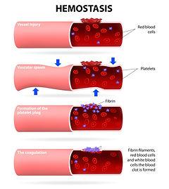 Basic Steps in Hemostasis Infographic -