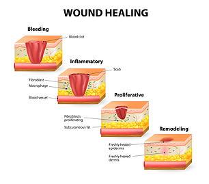 Wound Healing Infographic 01 - Copy.jpg