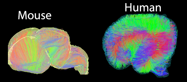 Compare Mouse and Human Brain