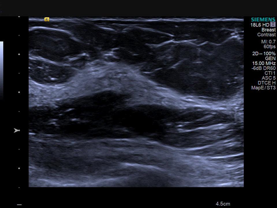 Ultrasonido de tejidos blandos