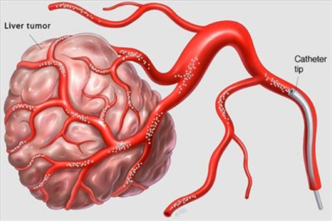 Suministro de sangre hepática