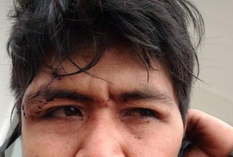 Repudio ante la violencia institucional y el racismo hacia el pueblo Qom en Chaco