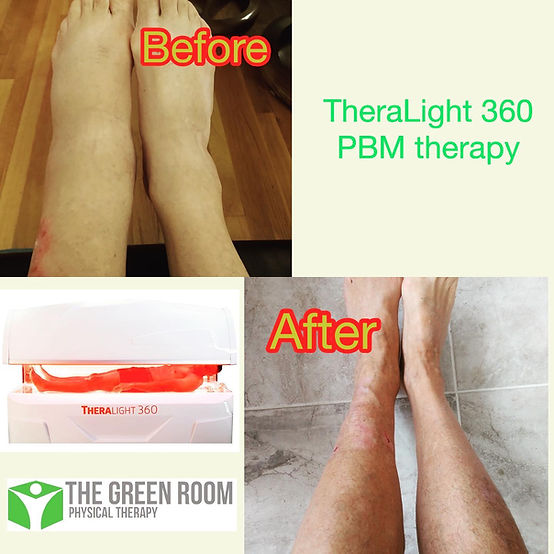 theralight before after.jpg