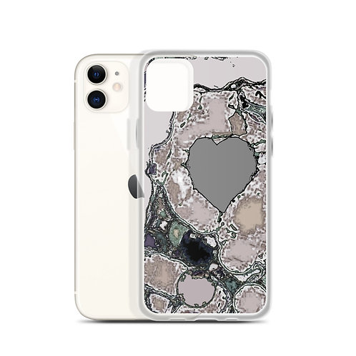 iPhone Case  A heart of stone