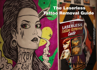 The Laserless Tattoo Removal Guide Review - Remove the tattoos painlessly