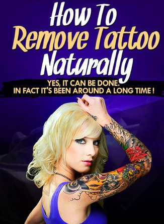 tattoo removal guide