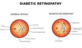 diabetic eye.jpg