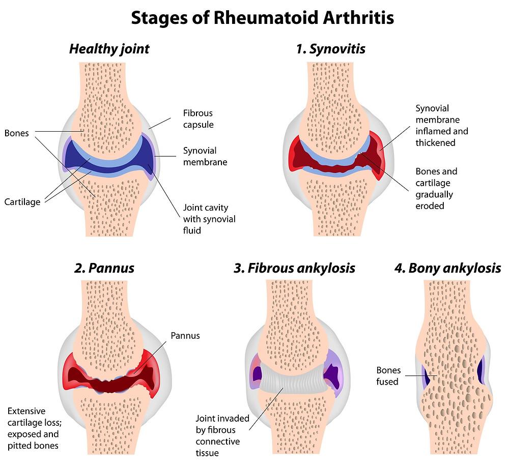 Diagram showing damage of the 4 stages of Rheumatoid Arthritis