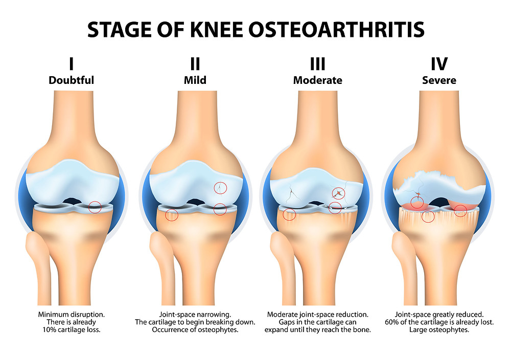 Diagram showing the 4 stages of wear from Osteoarthritis