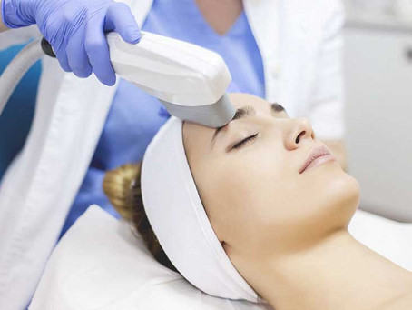 Everything you need to know about ipl treatments