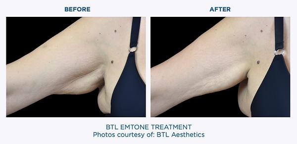 Emtone Before & After