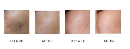 Acne / Acne Scars