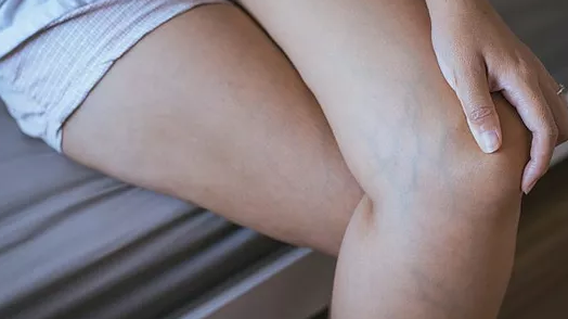 Vein Removal Treatment