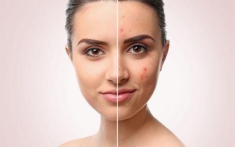 SKIN 101 Acne Treatments