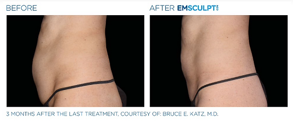 Emscultp NEO Before & After