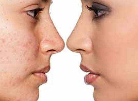 no more acne scars - the best treatments for you
