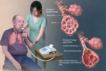 COPD_TBuck_042516.jpg