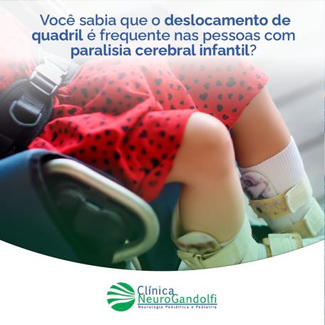 Você sabia que o deslocamento de quadril é frequente nas pessoas com paralisia cerebral infantil?