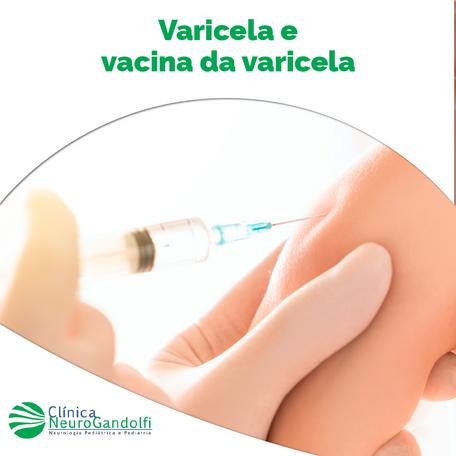 Varicela e Vacina da Varicela