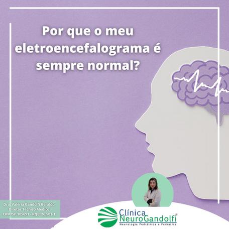 Por que o meu eletroencefalograma é sempre normal?