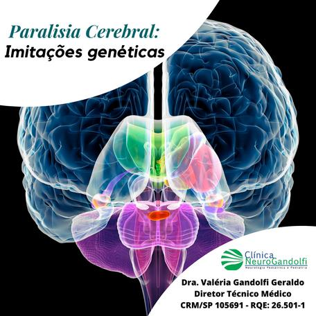 Paralisia Cerebral: Imitações Genéticas.