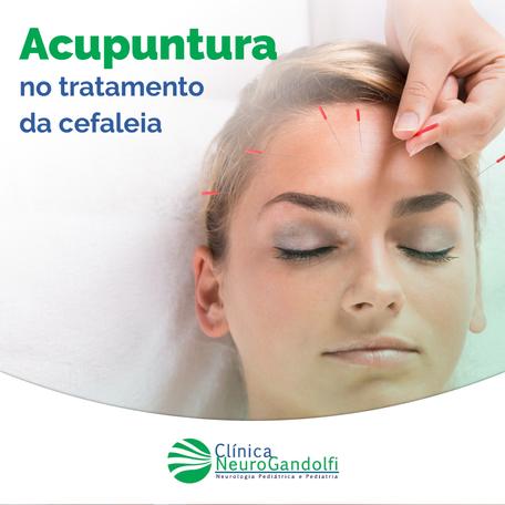 Acupuntura no tratamento da cefaleia