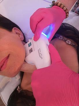 מכשיר HIFU דובלו לטיפול בריפיון עור ומיצ