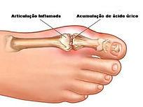 Artropatias microcristalinas