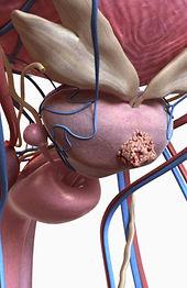 Câncer de Prostata