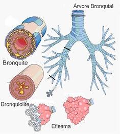 O que são doenças respiratórias?