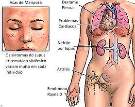 Doenças reumáticas sistémicas (DRS)