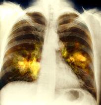 O que são doenças crônicas?
