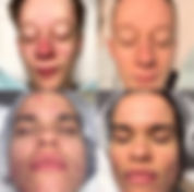 acne-behandlung 1.jpg