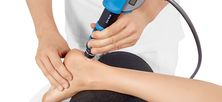 shockwave therapy treatment for achilles pain