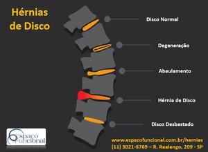 Espaço Funcional Hérnias de Disco