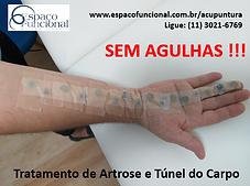 Espaço_Funcional_Artrose__e__tunel_do_ca