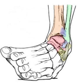 O que é a torção no tornozelo?