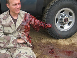 War Victim