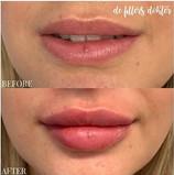 Filler Botox Najade3.jpg