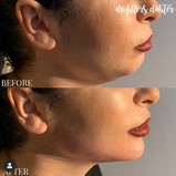 Filler Botox Najade1.jpg