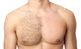 MEN-Laser-Hair-Removal-1.jpg