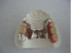 Illustration of the top partial denture