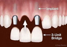 illustration of 3-unit implant