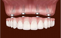 secondary view of implant overview